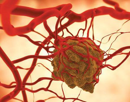 rákbetegség
