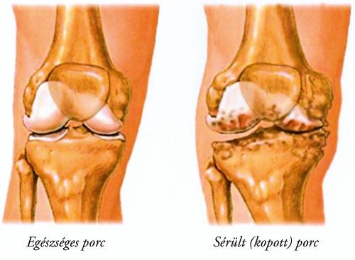 zselatin artrózis külső kezelésére