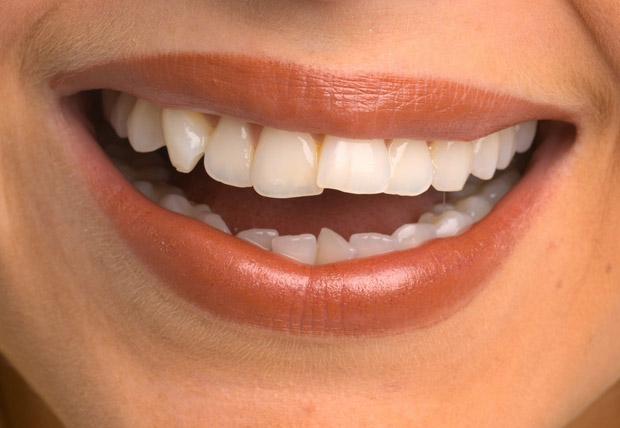 Teeth_620_1774235a