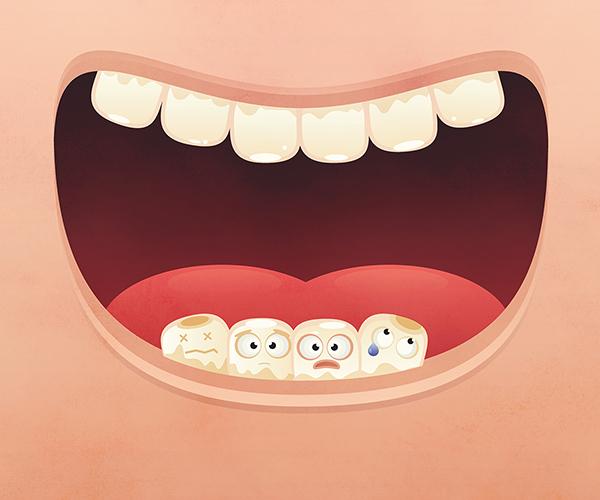 fogak-kisfelbontas