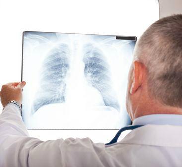 Tüdőrák - ilyenkor kell tartani a kiújulástól