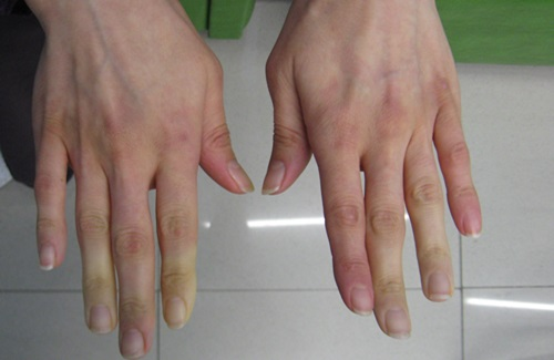 2014-08-19_Secondary_Raynauds_syndrome_2