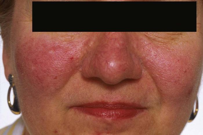 acne-rosacea-fig3_large