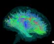 A nők agya, egyszerűen jobban működik mint a férfiaké!