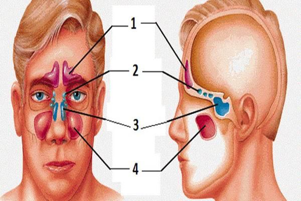 melléküreg-gyulladás
