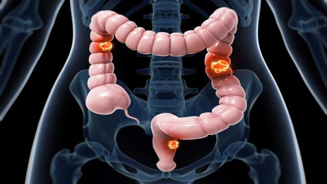 tumorsscreeningcolorectalcancer