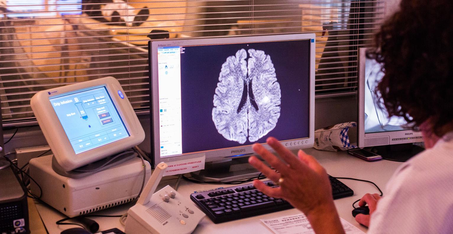 emberi-agy-cerebrum-Foto_AFP-e1439978578415