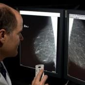 mammografia-620169