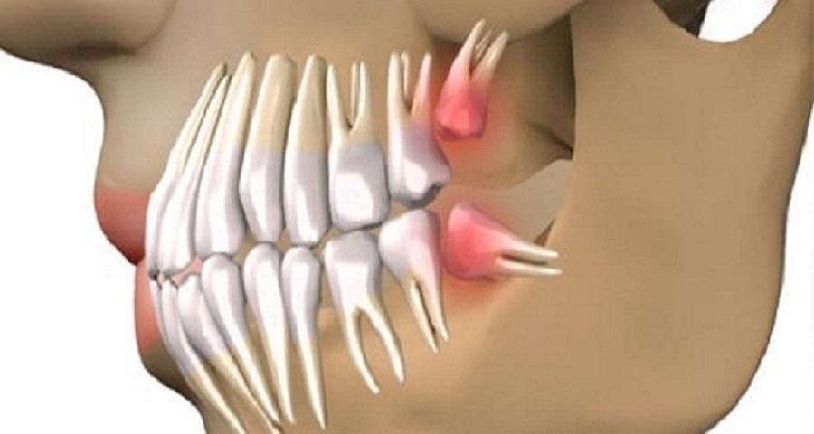 uj-korszak-fogaszatban-nincs-szukseg-implantatumra-fogak-63-nap-alatt-kinonek