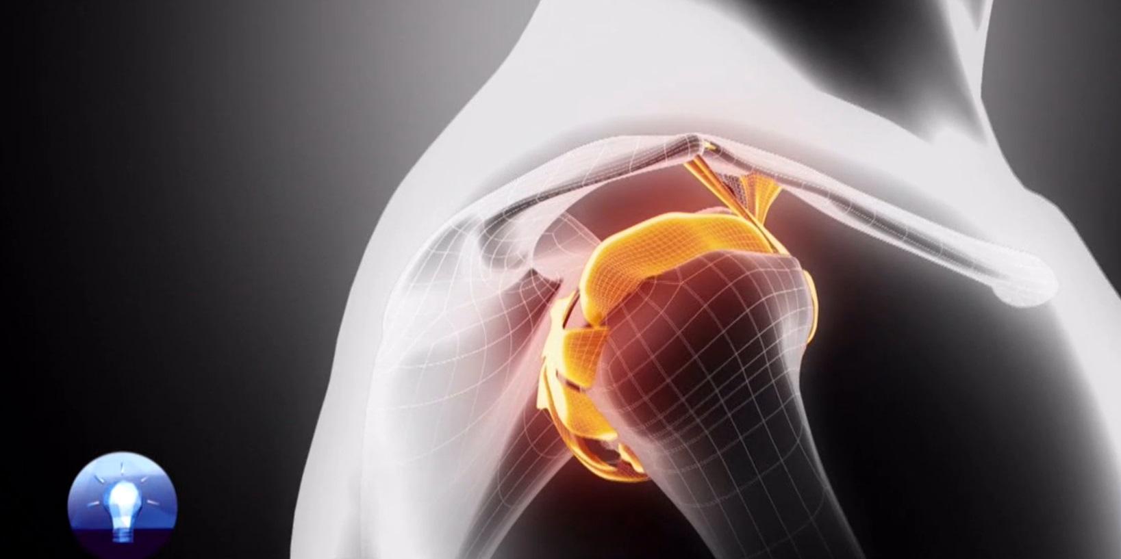 deformáló artrózis artritisz a térd receptek kenőcsök a fájdalom a lábak ízületeiben