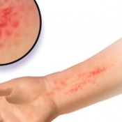 eczema-an-allergy-1-300x225-jpg-1200x630_q85_crop-center_upscale