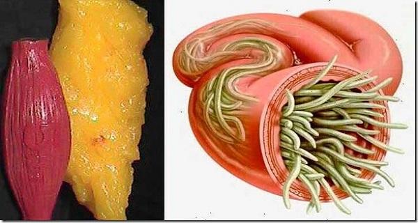 hasznald-ezt-a-ket-hozzavalot-hogy-minden-erofeszites-nelkul-kiuritsd-tested-zsir-es-parazita-raktarai