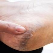 bőrkeményedés-3-összetevő