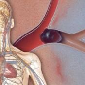 vérrög-jelei-a-testben