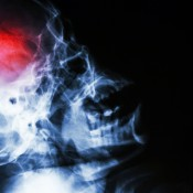 Stockphoto-stroke-koponya-röntgen