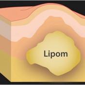 Anatomy-of-a-lipoma