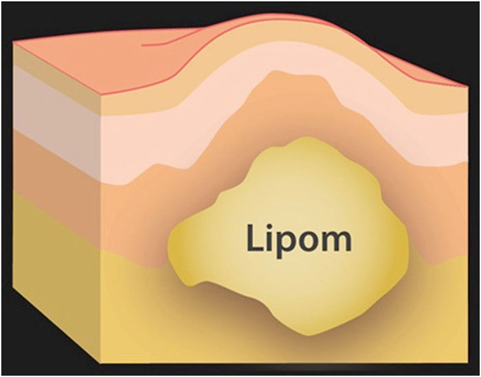 Anatomy-of-a-lipoma