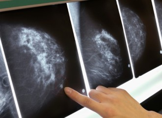 daganat