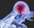 Ezek lehetnek az agydaganat tünetei! Figyeljen oda rájuk!