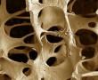 """A gyorséttermi és a tápérték nélküli """" szemét """" ételek gyengíthetik a csontokat és csontritkuláshoz vezethetnek"""