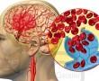 Vérrögök: a leggyakoribb halálosztók