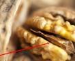 Ha megtörsz egy diót ne dobd el ezt a részét, mert aranyat ér! Eláruljuk milyen gyógyító erővel bír!